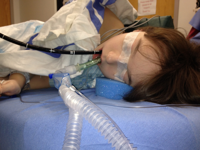 intubated anesthetized child